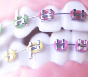 ¿Llevas ortodoncia? Te damos 10 recomendaciones para esta Navidad