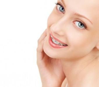 Cinco recomendaciones a seguir esta Semana Santa si llevas ortodoncia